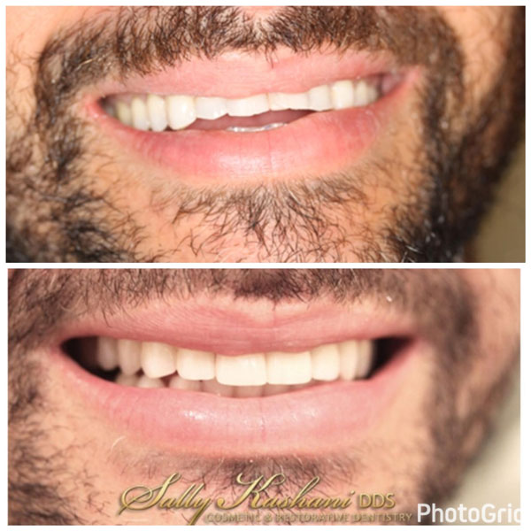 Hollywood Porcelain Veneers Before & After Photo