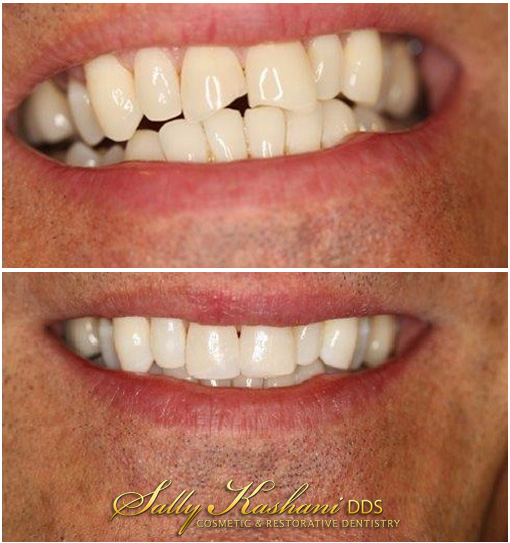 Hollywood Veneers Before & After Photo