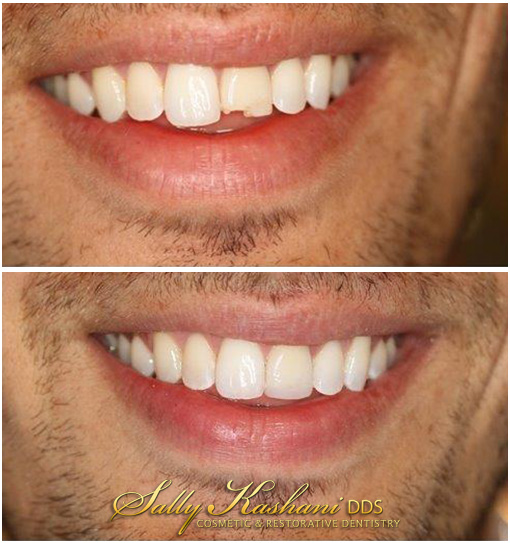 Hollywood Dentist Before & After Photo
