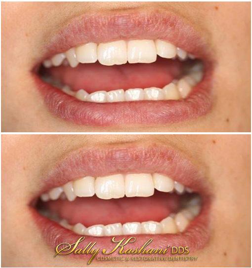 Hollywood Dental Bonding Before & After Photo