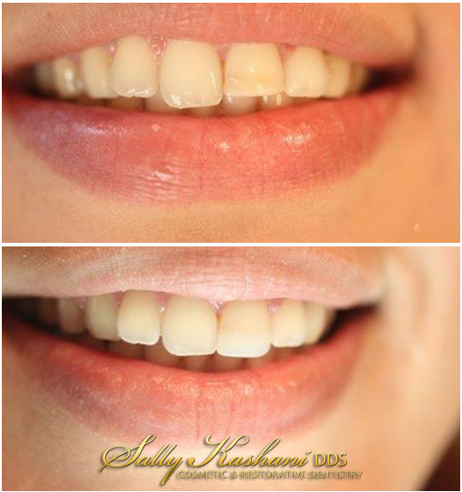 Hollywood Dental Bonding Before & After Photo