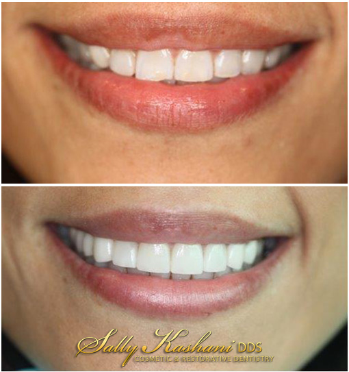Hollywood Dental Crowns Before & After Photo