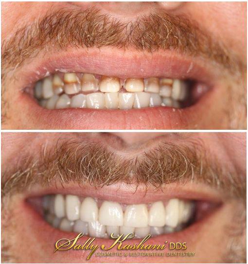 Hollywood Veneers Before & After Photo