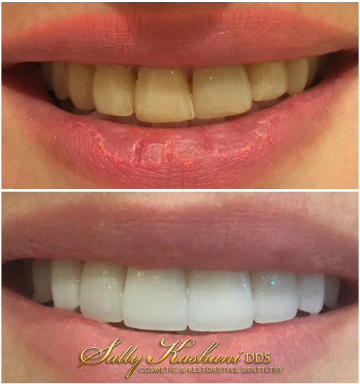 Cosmetic Dentist Hollywood, Smile Analysis