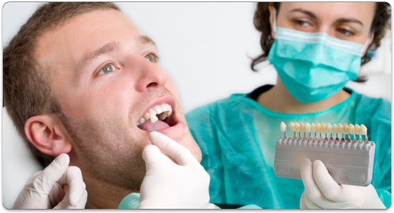 dental bonding hollywood