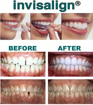 top-rated invisalign dentist hollywood ca
