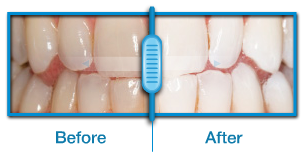 teeth whitening before after hollywood