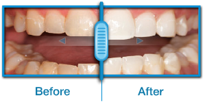 snap on smile before after hollywood