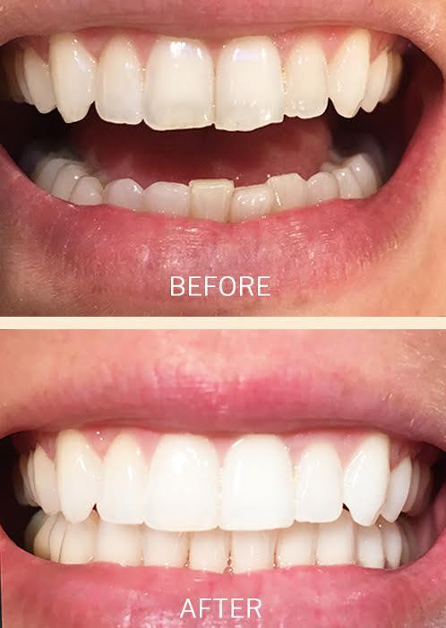 teeth whitening hollywood