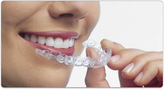 Invisalign Hollywood | Top-Rated Invisalign Dentist in Hollywood
