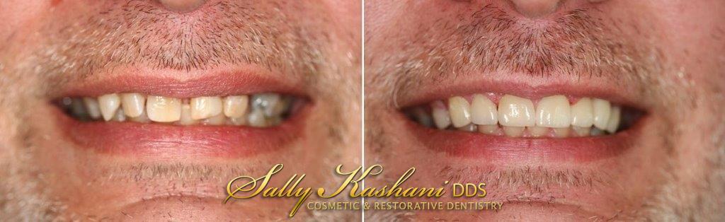 Porcelain Veneers Hollywood, Dental Veneers | Hollywood Dentist