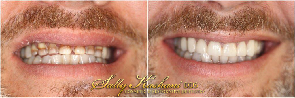 Porcelain Veneers Hollywood, Dental Veneers | Hollywood Dentist